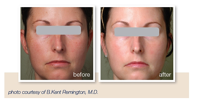 Lunch time treatment for pigmentation, age spots, sun damage Southampton
