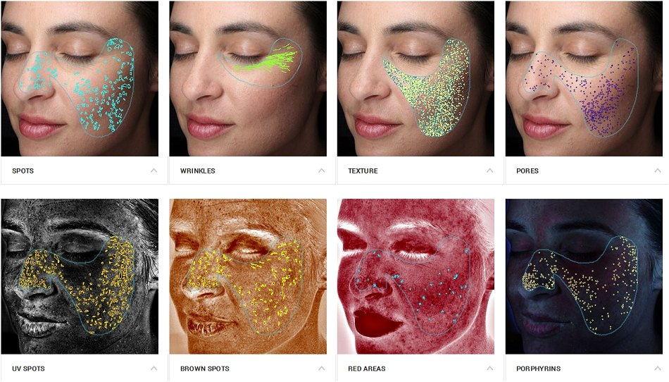 Visia Photo Imaging Skin Analysis Southampton