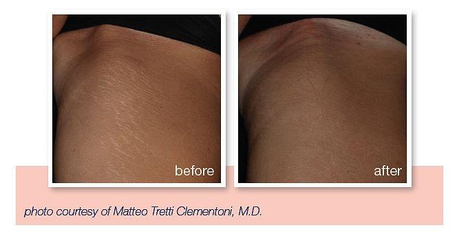get rid of stretch marks southampton