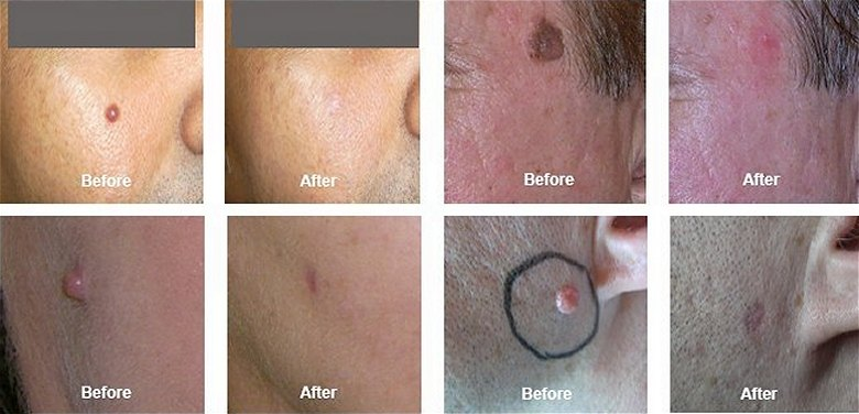 Mole and Skin Tag Removal southampton